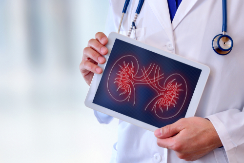 Why The Cost of Kidney Transplant Low in India