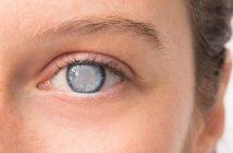 5 Positive Effects of Eye Cataract Surgery